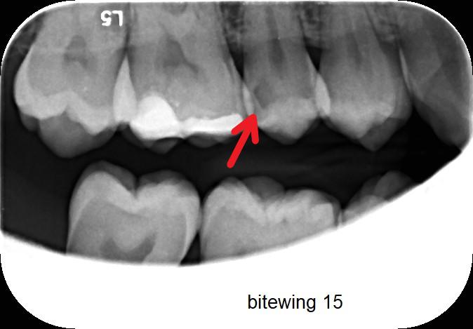 Karijes zuba preventivni pregled